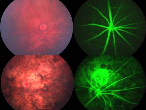 New Gene Linked To Blindness And Parkinson's Disease