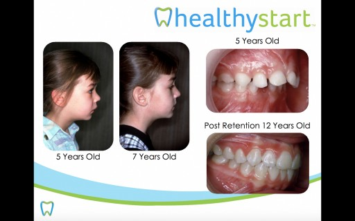 February is Children's Dental Health Month: The Real News-Flash Our Children Are GROWING INTO PROBLEMS