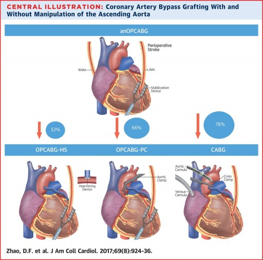 78% Stroke Reduction with Newer No-Touch Beating Heart Bypass Surgery, According to Landmark Study